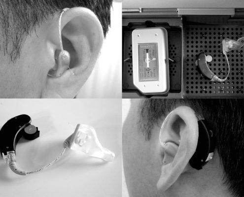 Trastornos de la voz y audición